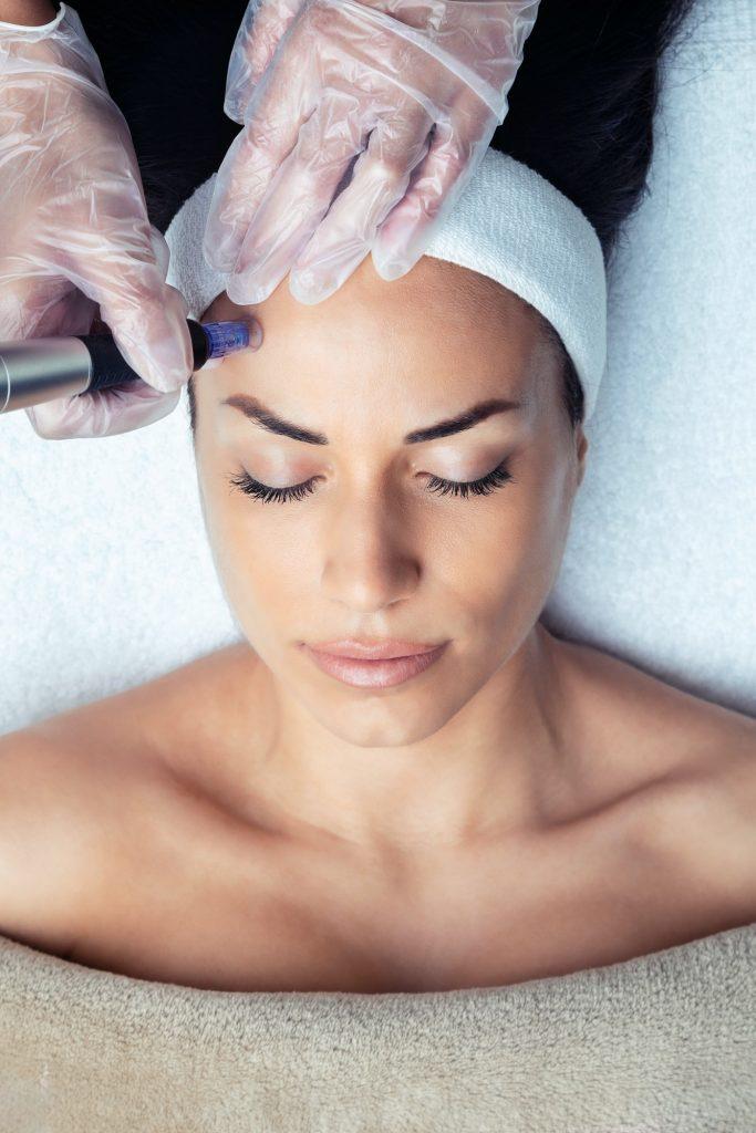 Kosmetologi tekee mikroneulausta